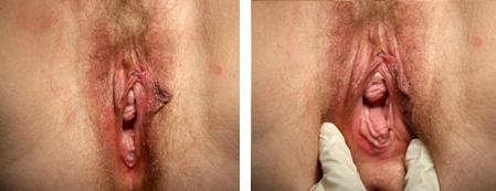 Before Reconstructive Vaginal Surgery